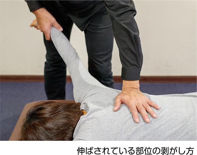 伸ばされている部位の剥がし方